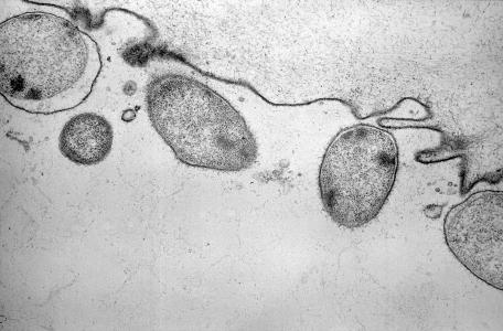 Création de la French Society for Extracellular Vesicles (FSEV)