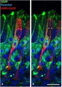 (a) Une cellule de soutien entourant les neurones olfactifs infectée par le SARS-CoV-2 (révélé en rouge) peut être interprétée comme l'infection d'un neurone (marqué en vert ici) si le plan de coupe enlève une partie de cette cellule de soutien (b).