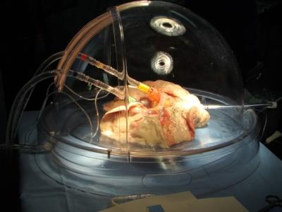 Lung Transplantation, immunopathology and immunomodulation