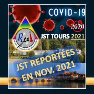 Report des JST  de Tours en 2021